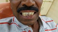 Жесть, как она есть. Уличные стоматологи в Пакистане