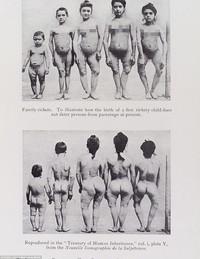 Фотосвидетельства прошлого: как раньше боролись с вырождением человечества