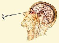 7 жутких способов лечения психических болезней из прошлого