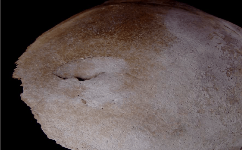 Фотография черепа, обнаруженного на озере: характер повреждения говорит о возможном воздействии града